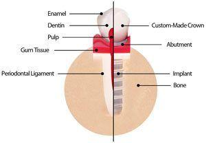 Details of a Dental Implant