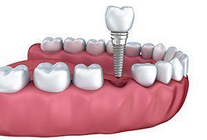 Implant Demonstration Image